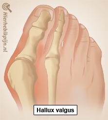 voet-hallux-valgus-anatomie2