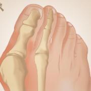 voet-hallux-valgus-anatomie